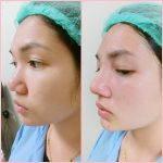Augmentation Rhinoplasty Pdf