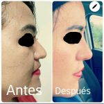 Augmentation Rhinoplasty To Correct Overresection Of The Nasal Dorsum
