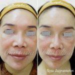 Augmentation Rhinoplasty With Silicone Implants (1)