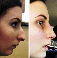 Before After Rhinoplasty For Large Nostrils In Tijuana Mexico at Cosmed Clinic