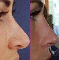 Before And After Cosmetic Surgery For Nose Photos