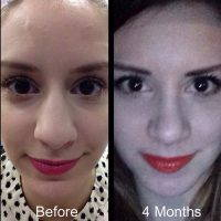 Before And After Fixing A Bulbous Nose