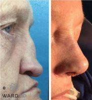 Before And After The Augmenting The Nasal Bridge