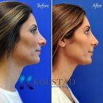 Bulbous Nose Before And After Nose Beaty Surgery (2)