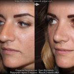Bulbous Nose Before And After Nose Surgery (1)
