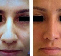 Bulbous Nose Can Be Corrected