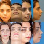 Bulbous Nose Causes