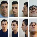 Bulbous Nose Pictures