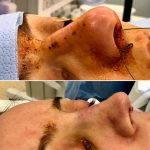 Bulbous Nose Plastic Surgery Pictures