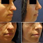 Bulbous Nose Surgery Before After