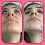 Bulbous Rhinoplasty Before And After (2)