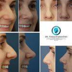 Correcting A Bulbous Nose (4)