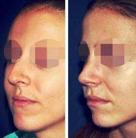 Cosmetic Surgery Nose In Minnesota Before And After
