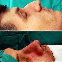 Cosmetic Surgery Nose Reshaping For Man Maryland Photos Before After