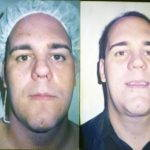 Cosmetic Surgery Rhinoplasty In New Orleans For Man