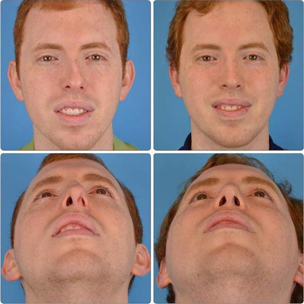 Crooked Nose – Meaning, Causes, Celebrities, Actors, How ...