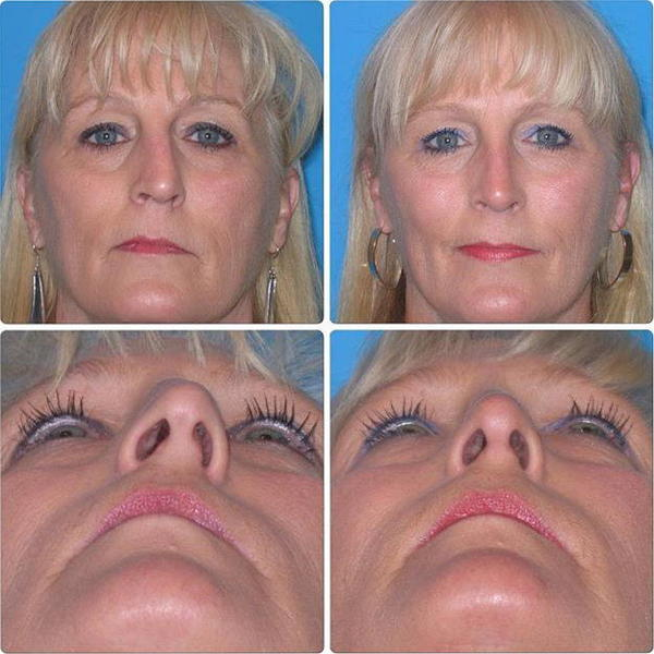Crooked Nose Surgery Before And After » Rhinoplasty: Cost ...