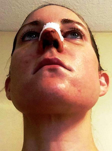 Dr Prabhash S Plastic Surgery In Nose In New Delhi India Rhinoplasty Cost Pics Reviews Q A