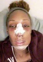 Ethnic Nose Plastic Surgery Procedure Tehran