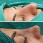 Fixing Bulbous Nose Tip (2)