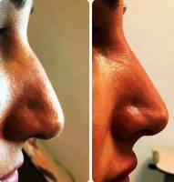 Free Nose Surgery Before And After Photo