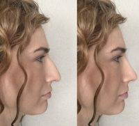 Free Rhinoplasty Surgery Due To Online Fundraising For Surgery