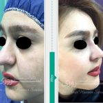 How To Fix Bulbous Nose With Surgery