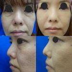 Image Of Korean Nose Tip Surgery