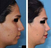 Iran Is Known As The Rhinoplasty Capital Of The World