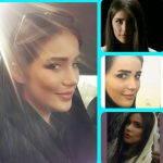 Iran Revision Rhinoplasty (4)