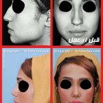 Iran Rhinoplasty Before After (1)