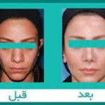 Iran Rhinoplasty Before After (2)