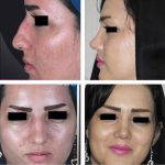 Iran Rhinoplasty Before After (3)