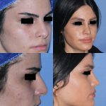 Iran Rhinoplasty Before After (4)