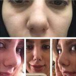 Iranian Big Nose