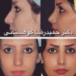 Iranian Hooked Nose