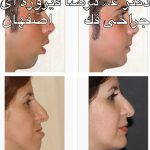 Iranian Nose Job Pictures (1)