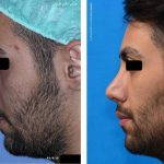 Iranian Nose Job Pictures (5)