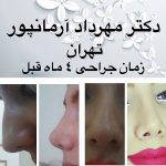 Iranian Nose Job Pictures (6)