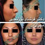 Iranian Nose Job Pictures (8)