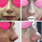 Iranian Nose Operation Before And After (1)