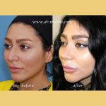Iranian Nose Plastic Surgery Before And After (1)