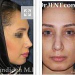 Iranian Nose Plastic Surgery Before And After (3)