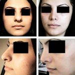 Iranian Nose Shape Pictures (1)