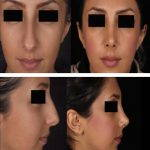 Iranian Nose Shape Pictures (3)