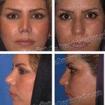 Iranian Nose Shape Pictures (4)