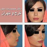 Iranian Nose Surgery Before And After (2)