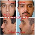 Iranian Nose Surgery Before And After (3)