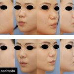 Korea Best Rhinoplasty (4)