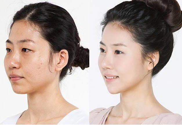 korean rhinoplasty before and after wwwpixsharkcom